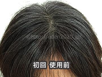 item-rishiri_beforeafter01