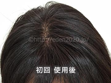 item-rishiri_beforeafter02