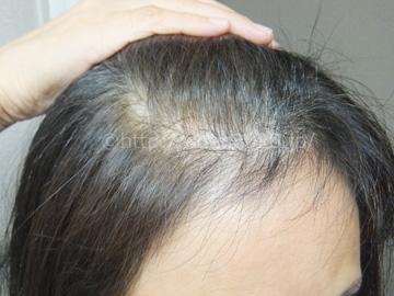 angie-kirari-process_introphoto_hairstyle02