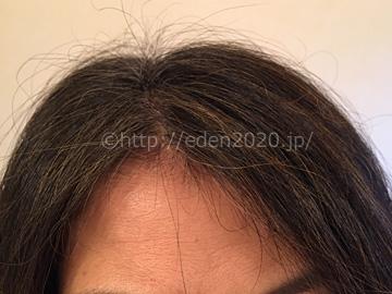 mayomayo-kirari-process_introphoto_hairstyle02