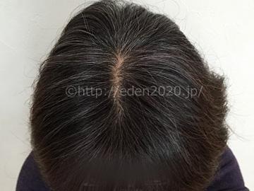 mayomayo-rishiri-process_introphoto_hairstyle02